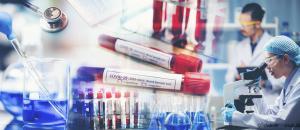 Une nouvelle commande de vaccins contre la COVID